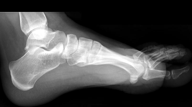 Who knew? Getting your foot x-rayed could save your life!