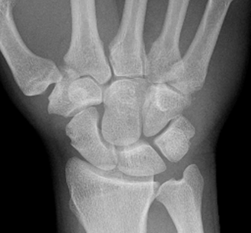 X ray wrist anatomy